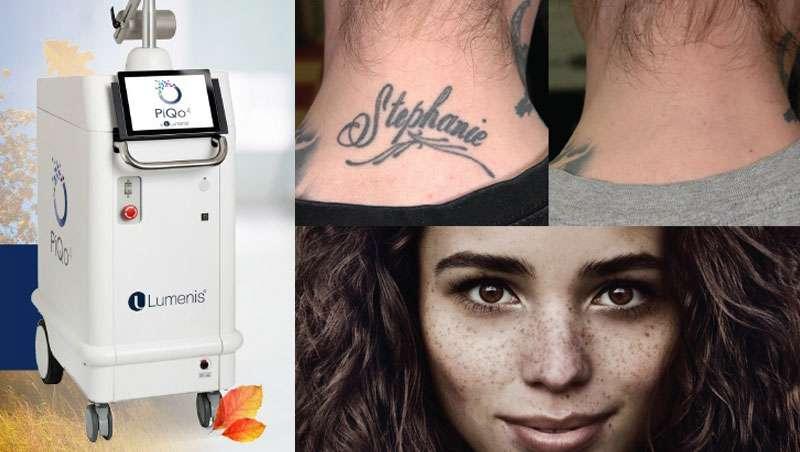 PiQo4, lo último en aparatología para tratar tatuajes y rejuvenecer la piel