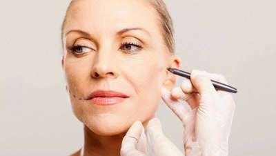 Lipofilling Facial, el tratamiento más completo