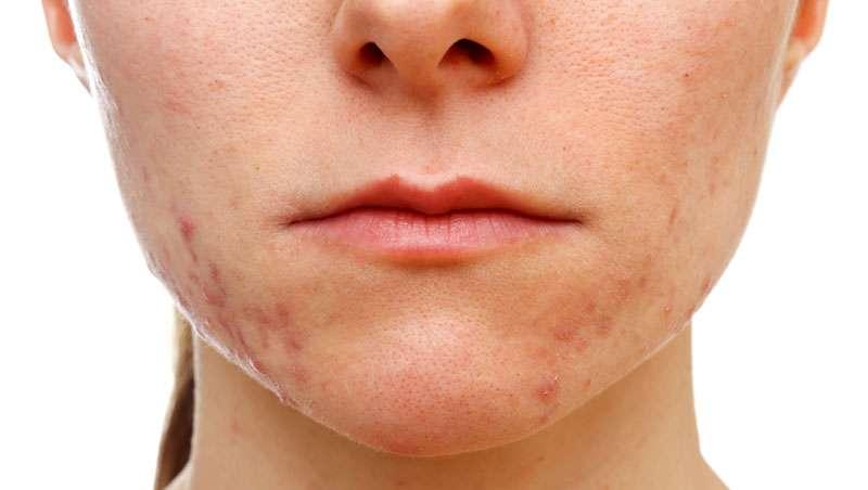 Contra todo tipo de acné, eficacia probada Wishpro