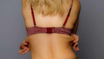 Belkyra: adiós a los bra-rolls o grasa acumulada en la espalda