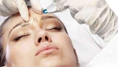 Llega la 'cirugía suave' para conseguir una piel tersa y joven