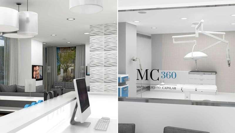 Nace MC360, clínica de trasplante capilar