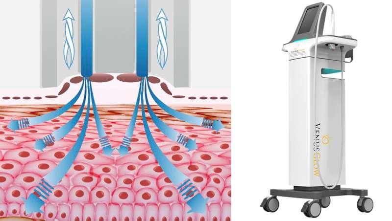 Venus Glow, hidrodermoabrasión en profundidad para la higiene facial