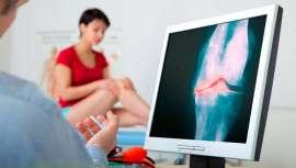 Incapacitante en buena medida y dolorosa, así es la artrosis. Revisamos con Clínicas Rozalen el origen de esta enfermedad degenerativa y marcamos sus pautas para evitar su aparición temprana