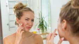 Los resultados de este producto, que verá la luz a mediados de 2019, demuestran una mejora duradera de un 85%  del acné al año