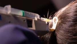 El láser de baja intensidad se descubre como un aliado fundamental de los tratamientos que logran recuperar y fortalecer el cabello, una alteración que afecta no sólo al género masculino, sino también cada vez a mayor número de mujeres