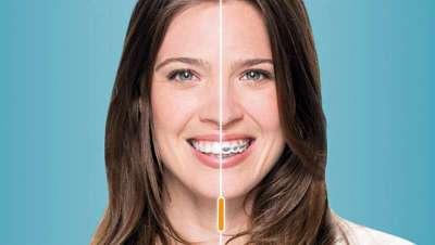 La ortodoncia invisible, el mejor truco de belleza para una sonrisa bonita