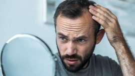 El tratamiento, desarrollado por el Dr. Ramón Vila-Rovira, implica implantes de factores de crecimiento y células estromales  de tejido graso del propio paciente. Sin duda, la técnica más novedosa para tratar la alopecia masculina y femenina