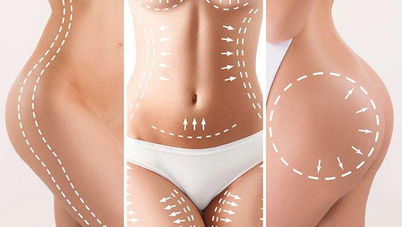 areas de tratamiento de protocolo corpo-fit