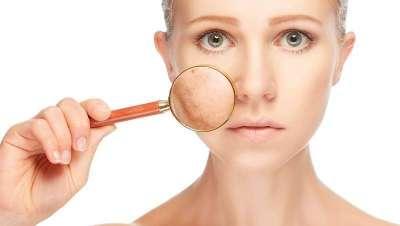 A importância de saber identificar pontos de pele