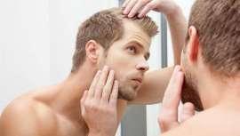Cómo cuidarse antes y después de la intervención, fundamental para no perder un solo pelo trasplantado