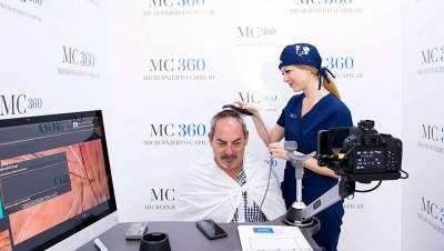 Un médico español desarrolla un revolucionario equipo de microinjerto capilar para Fotofinder