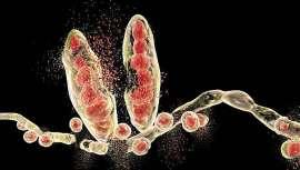 Infección por hongos que se instala con cierta frecuencia en el cuero cabelludo, revisamos tipos y clases, síntomas, tratamiento y prevención para tu seguridad en el salón de peluquería y la de tu cliente