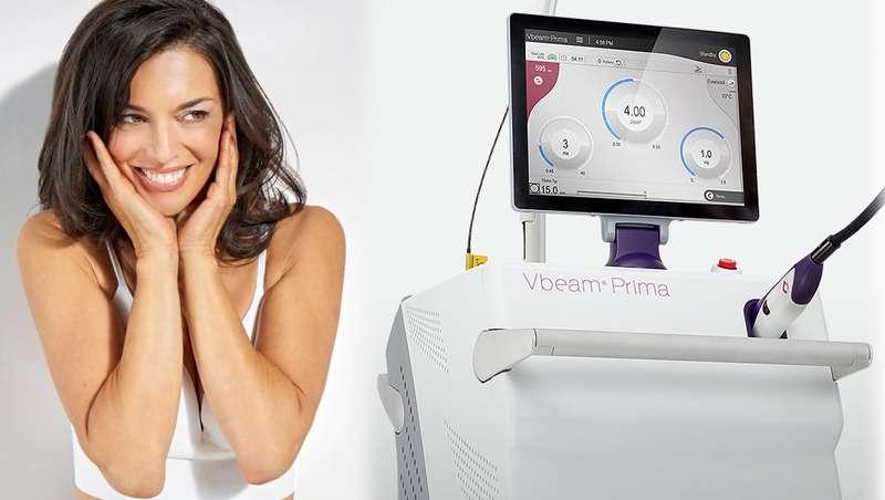 VBeam Prima de Candela Medical España, plataforma multitratamiento facial y corporal