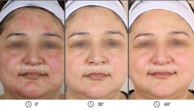 Cómo recuperar la piel después del microneedling en menos de una hora