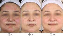 BCN Heal repara y restaura la función barrera de la piel, oxigena y alisa la superficie cutánea, ayuda a mantener los efectos del tratamiento profesional y deja la piel preparada para una nueva sesión de tratamiento