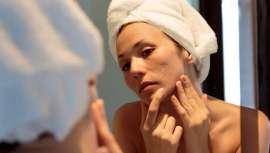 Clínica Dermatológica Internacional propone un tratamiento eficaz para tratar cada tipo de cicatriz. Se lleva a cabo un protocolo de actuación consiguiendo una mejora de un 50% como mínimo en estas marcas