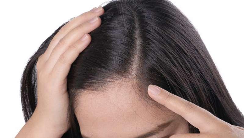 El 20% de las mujeres padece alopecia y el problema puede comenzar en la adolescencia