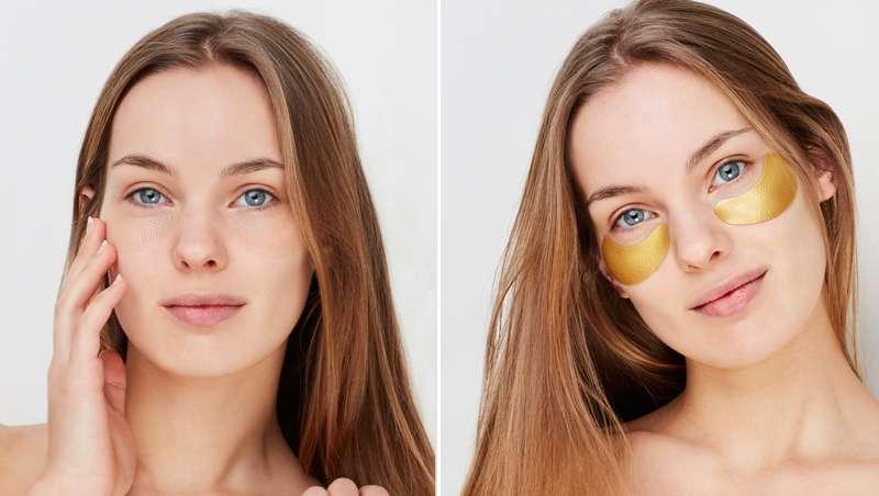 Cómo eliminar bolsas, ojeras y arrugas de expresión