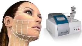 Tratamiento no quirúrgico que utiliza ultrasonido focalizado, permitiendo penetrar las capas de la piel tanto a nivel superficial como profundo. Levanta y tonifica la piel flácida en áreas como frente, cejas, ojos, mejillas, cuello, etc.