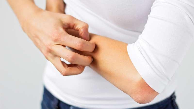 Ponemos freno a la histamina. ¿Qué es...? Responsable de la alergia y sus efectos no deseados en la piel
