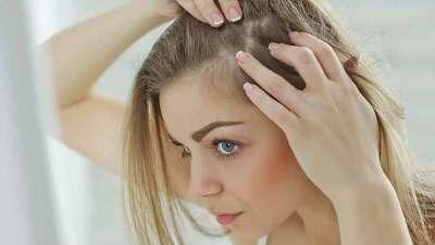 Hair Plasma: tratamiento para frenar la caída del cabello asociada a la Covid-19