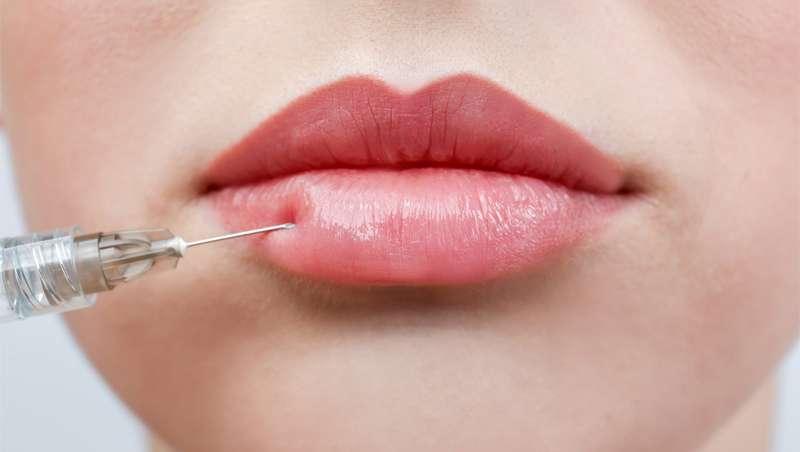 Russian Lips, ¡los mejores labios del momento!