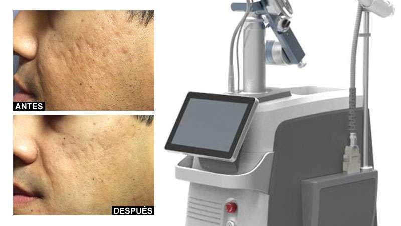 Cutera lanza Fraxis PRO Dermal Remodeling Technology