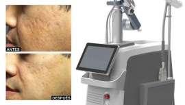 Combinación de CO2 fraccionado y radiofrecuencia para el tratamiento dermatológico de todas las afecciones de la piel