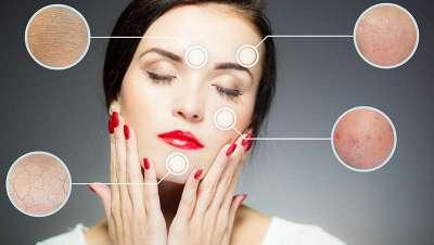Una dermatóloga aconseja vigilar las manchas de la piel que aparecen después de las vacaciones de verano