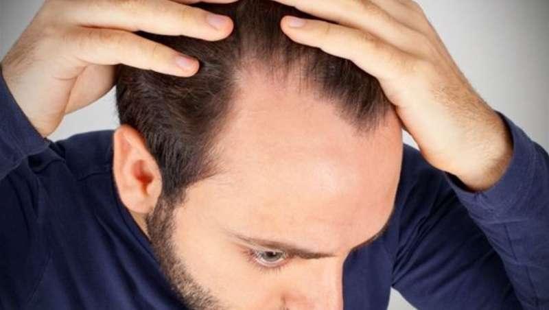 Perda de cabelo estacional? Causas reais e uma solução eco sustentável