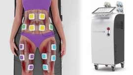 Tratamiento simultáneo de 8 zonas, a través de electroestimulación muscular, tecnología exclusiva de Cutera