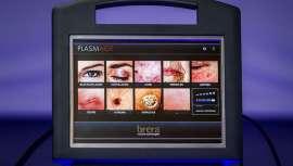 Tecnología contra las arrugas, entre otros usos antiaging, avalada por el Dr. Contreras Sánchez J. en su artículo científico sobre Plasmage, estudio publicado por la SEME, Sociedad Española de Medicina Estética