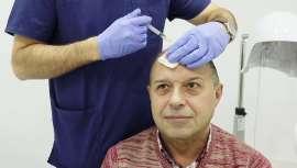 Un tratamiento utilizado por los especialistas que en medicina capilar empieza a despuntar como solución a la alopecia androgénica