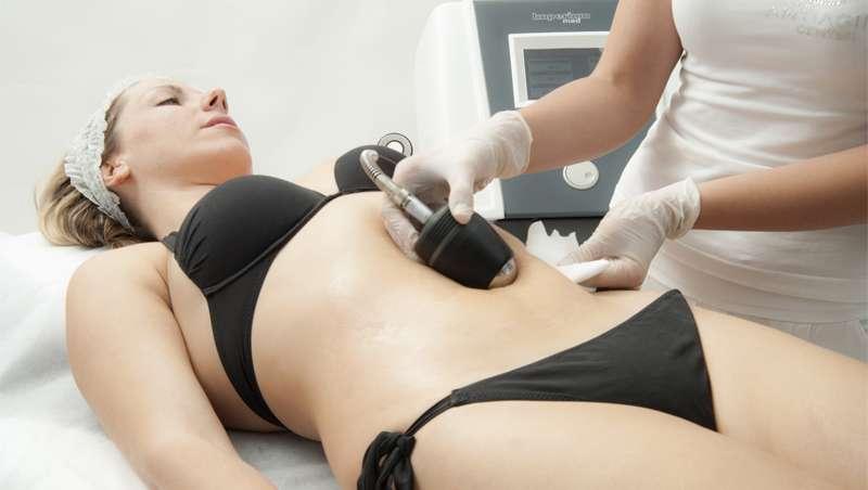 Ultracav, el manípulo de Imperium Med 400 ideal para eliminar la grasa y modelar la silueta
