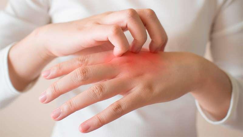 La dermatitis en aumento a causa del lavado de manos riguroso y el uso de desinfectantes con alcohol