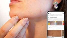 El gigante Google anuncia que ofrecerá nuevas funciones de inteligencia artificial para ayudar a los usuarios de Internet a identificar sus problemas cutáneos, recomendándoles tratamientos
