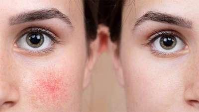 Rosácea, enfermedad de la piel agravada por la pandemia