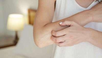 La dieta occidental, precursora de las enfermedades inflamatorias de la piel, caso de la psoriasis