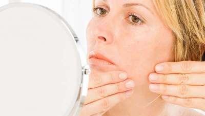 Nueve razones para una piel sensible