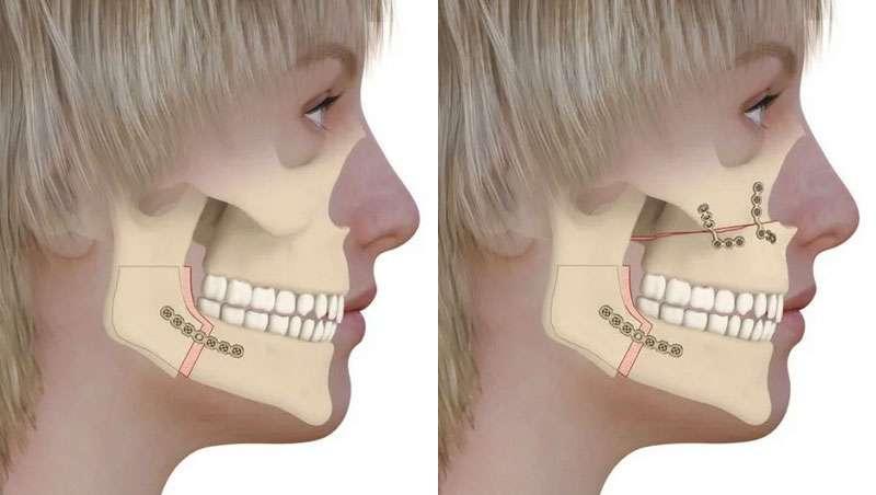 Cirugía ortognática, qué es