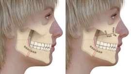 ICO, Instituto de Cirugía Ortognática, revisa al detalle este proceso, concepto e intervención referido a la alineación de la mandíbula