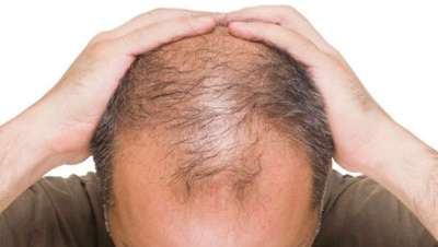 España, el segundo país del mundo en alopecia masculina
