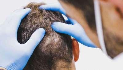 Beneficios del Plasma Rico en Plaquetas en tu cabello
