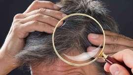 La pérdida de pelo más relacionada con la ansiedad o el estrés suele ser el efluvio telógeno o alopecia nerviosa, en la que se altera el ciclo vital de los folículos pilosos, provocando el paso abrupto de la fase anágena a telógena