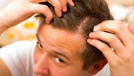 Segundo um último estudo, o sulforano, um composto orgânico presente em alimentos como os brócolos e a couve-flor, poderia ajudar a prevenir a perda de cabelo e até aumentar o seu crescimento
