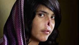 Una intervención devuelve la sonrisa a la afgana mutilada por su marido, cuyo caso fue portada de revistas y conmovió al mundo