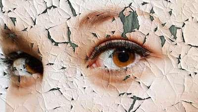 Combate las estrías, la celulitis y el acné con la Carboxiterapia