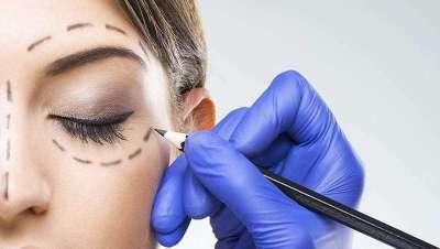Blefaroplastia qu�mica: elimina las bolsas oculares sin cirug�a