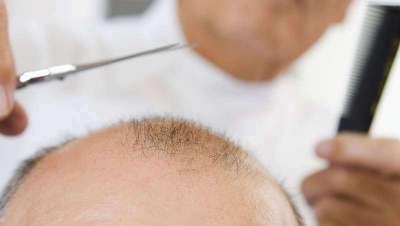 La finasterida, el medicamento más eficaz actualmente contra la alopecia masculina
